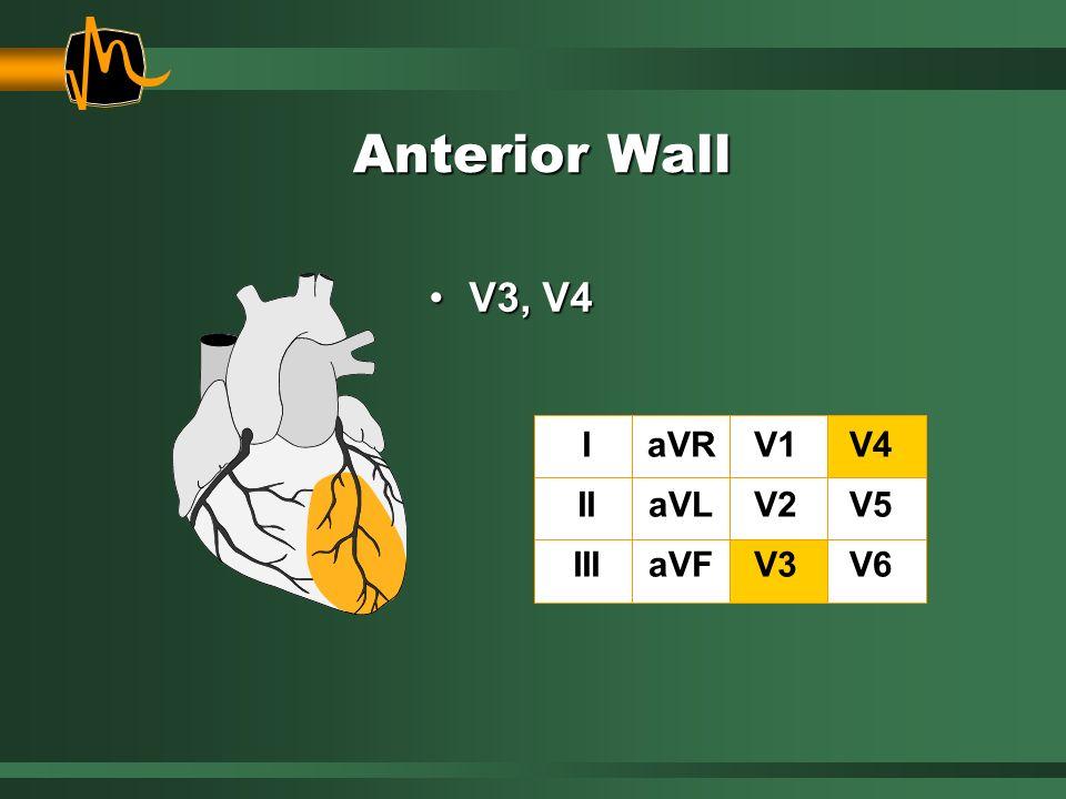 Anterior Wall V3, V4V3, V4 I II III aVR aVL aVF V1 V2 V3 V4 V5 V6