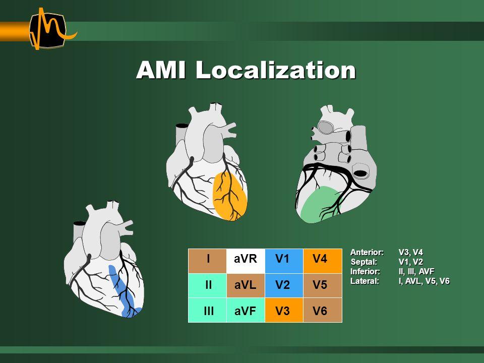 AMI Localization Anterior: V3, V4 Septal: V1, V2 Inferior: II, III, AVF Lateral:I, AVL, V5, V6 I II III aVR aVL aVF V1 V2 V3 V4 V5 V6