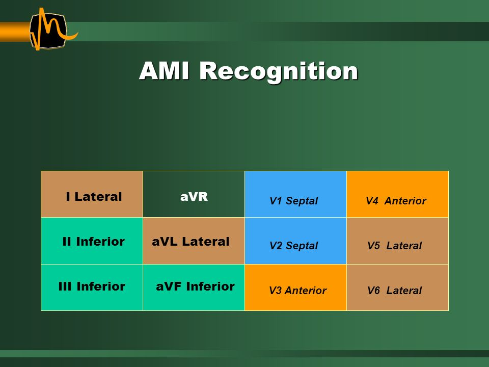 AMI Recognition I Lateral II Inferior III Inferior aVR aVL Lateral V1 Septal aVF Inferior V2 Septal V3 Anterior V4 Anterior V5 Lateral V6 Lateral