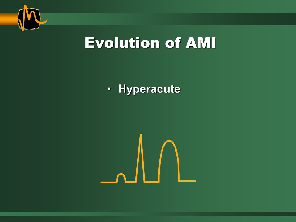 Evolution of AMI HyperacuteHyperacute