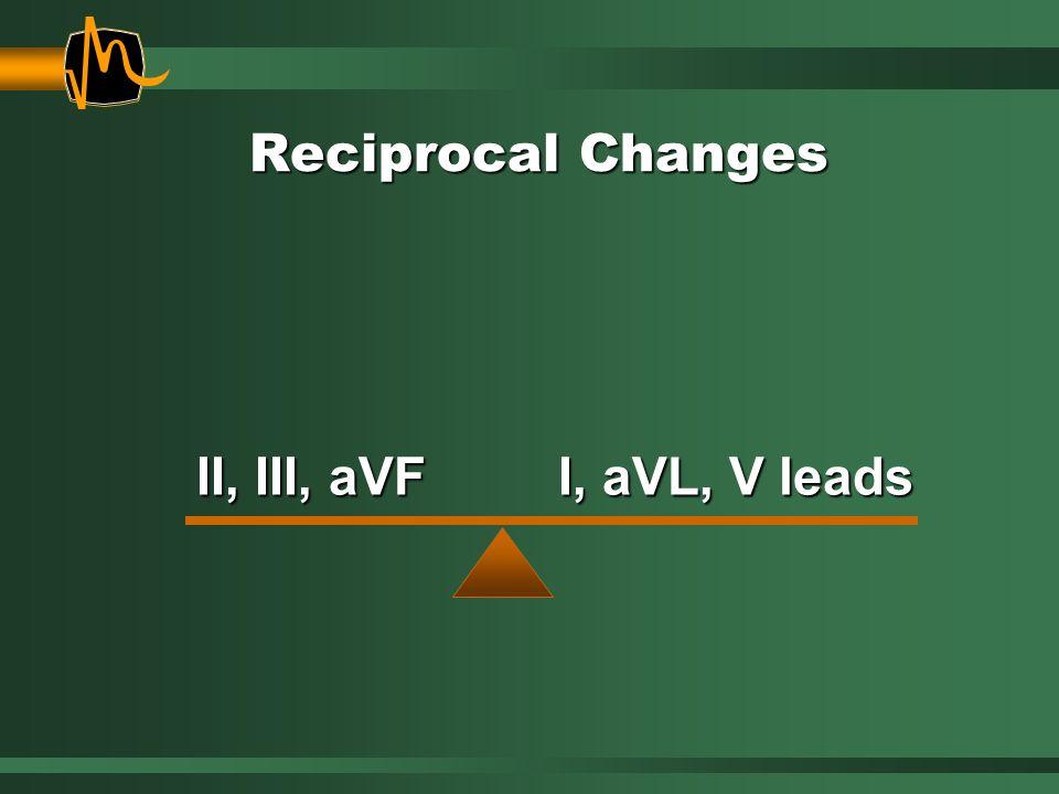 II, III, aVF I, aVL, V leads