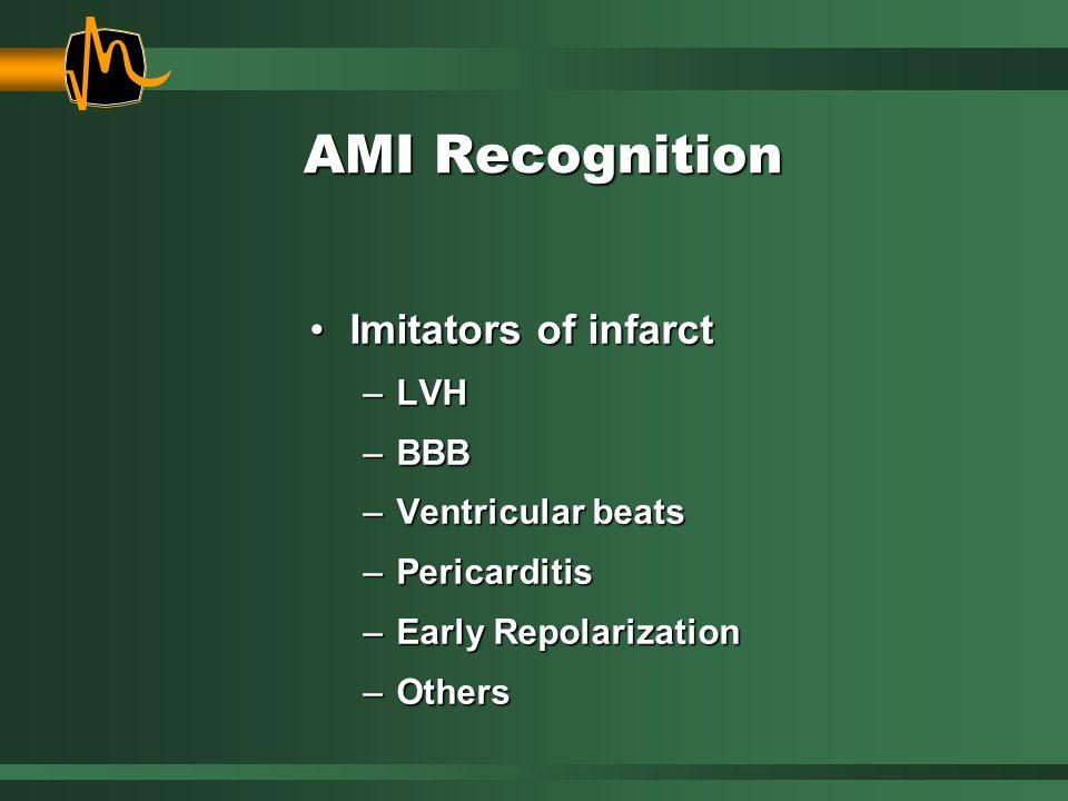 Imitators of infarctImitators of infarct –LVH –BBB –Ventricular beats –Pericarditis –Early Repolarization –Others