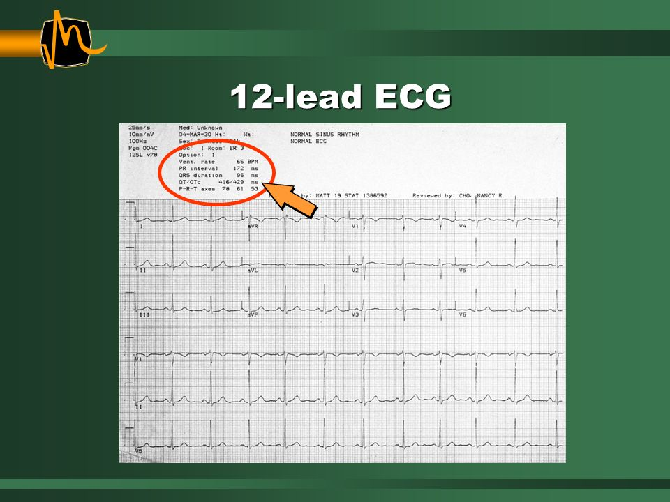 12-lead ECG