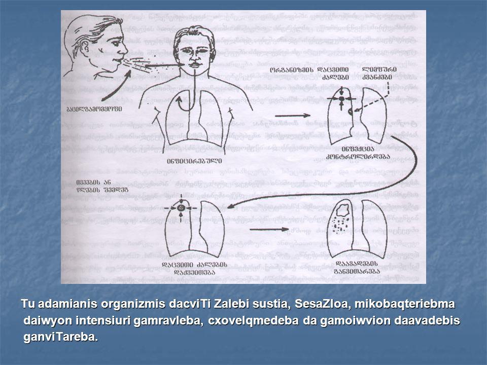 rogor ar vrceldeba tuberkulozi.