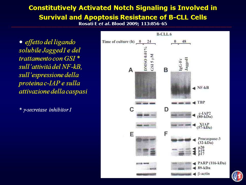 Constitutively Activated Notch Signaling is Involved in Survival and Apoptosis Resistance of B-CLL Cells Rosati E et al.