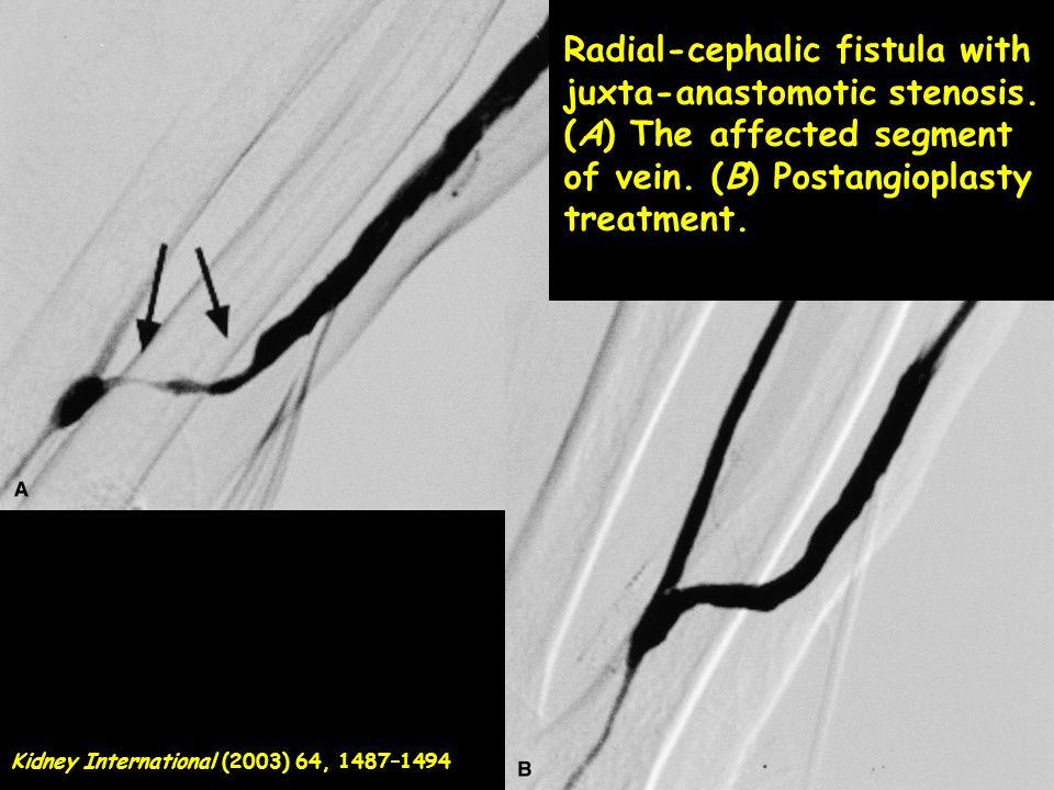 Radial-cephalic fistula with juxta-anastomotic stenosis. (A) The affected segment of vein. (B) Postangioplasty treatment. Kidney International (2003)