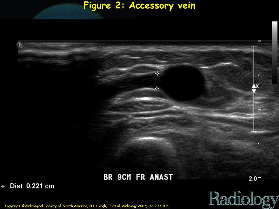 Copyright ©Radiological Society of North America, 2007Singh, P. et al. Radiology 2007;246:299-305 Figure 2: Accessory vein