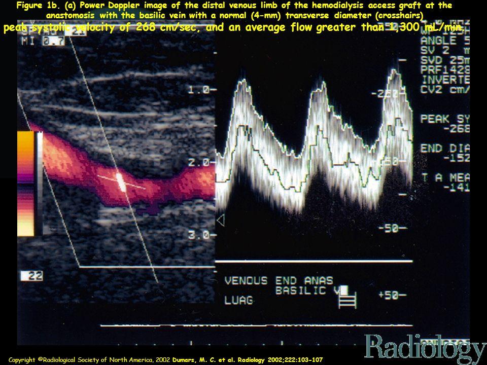 Copyright ©Radiological Society of North America, 2002 Dumars, M. C. et al. Radiology 2002;222:103-107 Figure 1b. (a) Power Doppler image of the dista