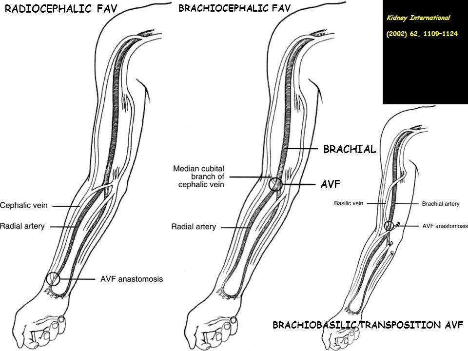 RADIOCEPHALIC FAV BRACHIOCEPHALIC FAV BRACHIAL AVF BRACHIOBASILIC TRANSPOSITION AVF Kidney International (2002) 62, 1109–1124