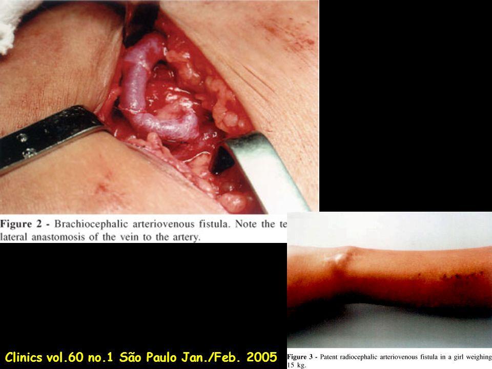 RadioGraphics, Vol 13, 983-989, 1993 Duplex and color Doppler sonography of hemodialysis arteriovenous fistulas and grafts DE Finlay, DG Longley, MC Foshager and JG Letourneau.