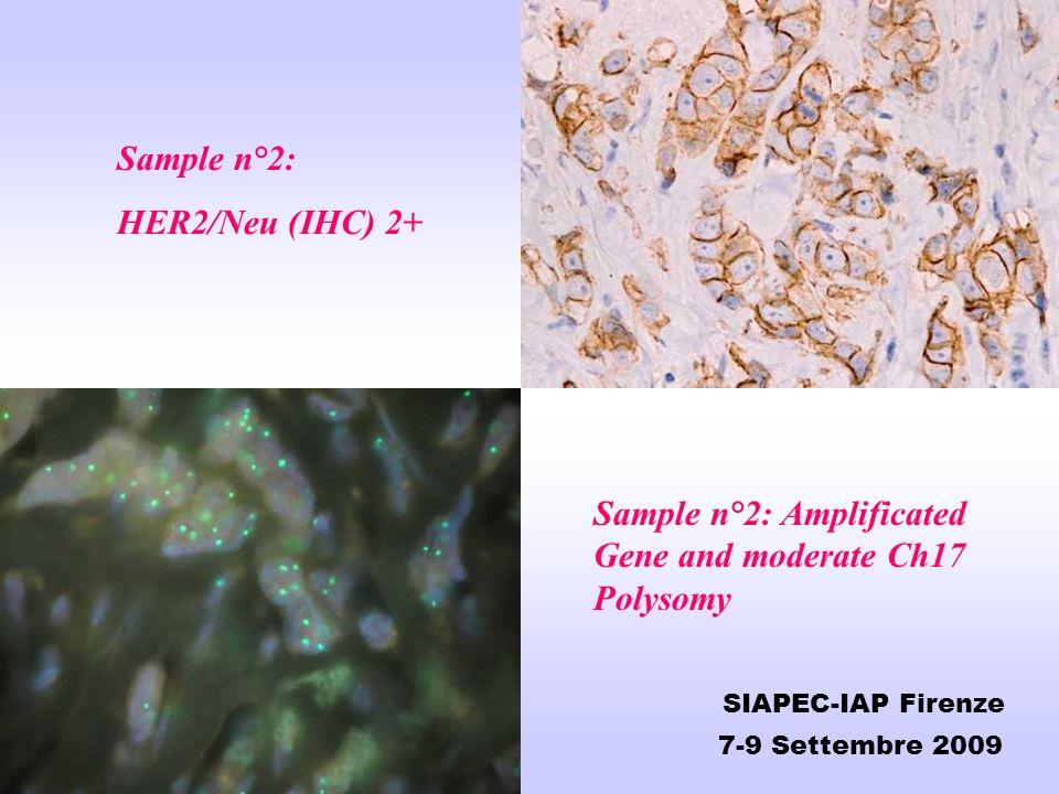 Sample n°2: HER2/Neu (IHC) 2+ Sample n°2: Amplificated Gene and moderate Ch17 Polysomy SIAPEC-IAP Firenze 7-9 Settembre 2009