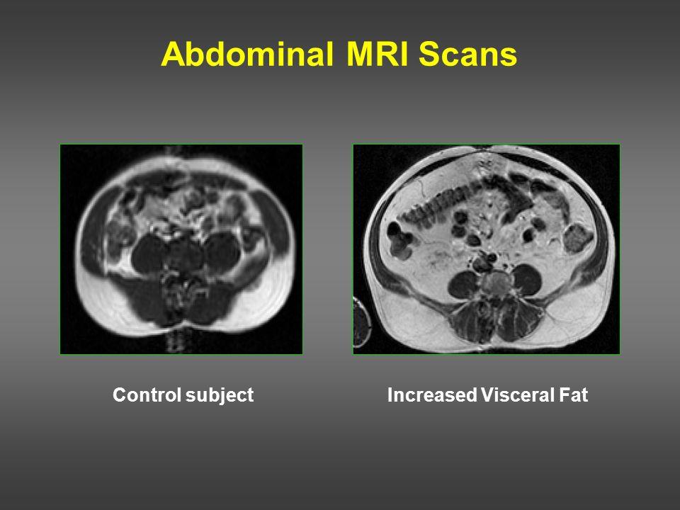 Abdominal MRI Scans Control subjectIncreased Visceral Fat