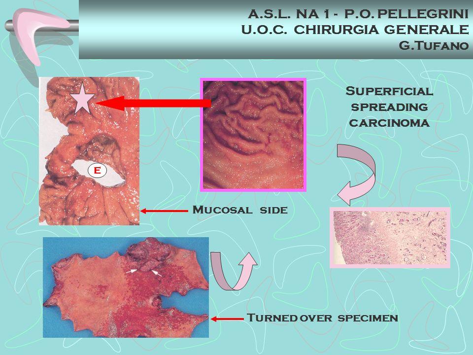 E Turned over specimen Mucosal side Superficial spreading carcinoma