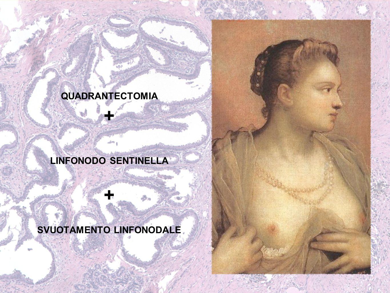 QUADRANTECTOMIA + LINFONODO SENTINELLA + SVUOTAMENTO LINFONODALE
