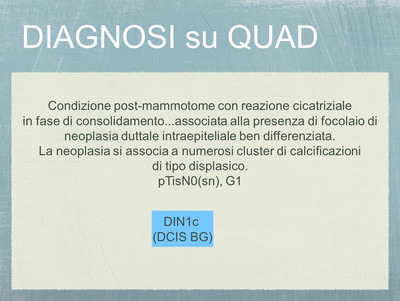 DIAGNOSI su QUAD Condizione post-mammotome con reazione cicatriziale in fase di consolidamento...associata alla presenza di focolaio di neoplasia dutt