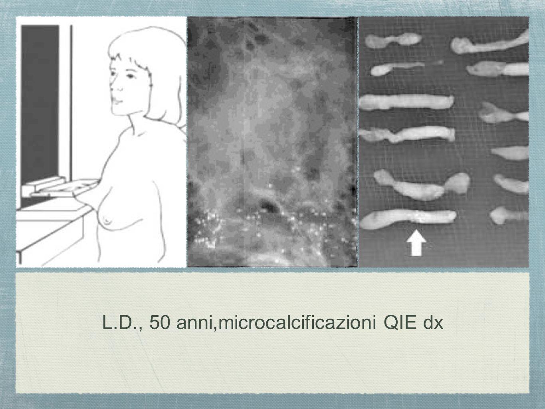 L.D., 50 anni,microcalcificazioni QIE dx
