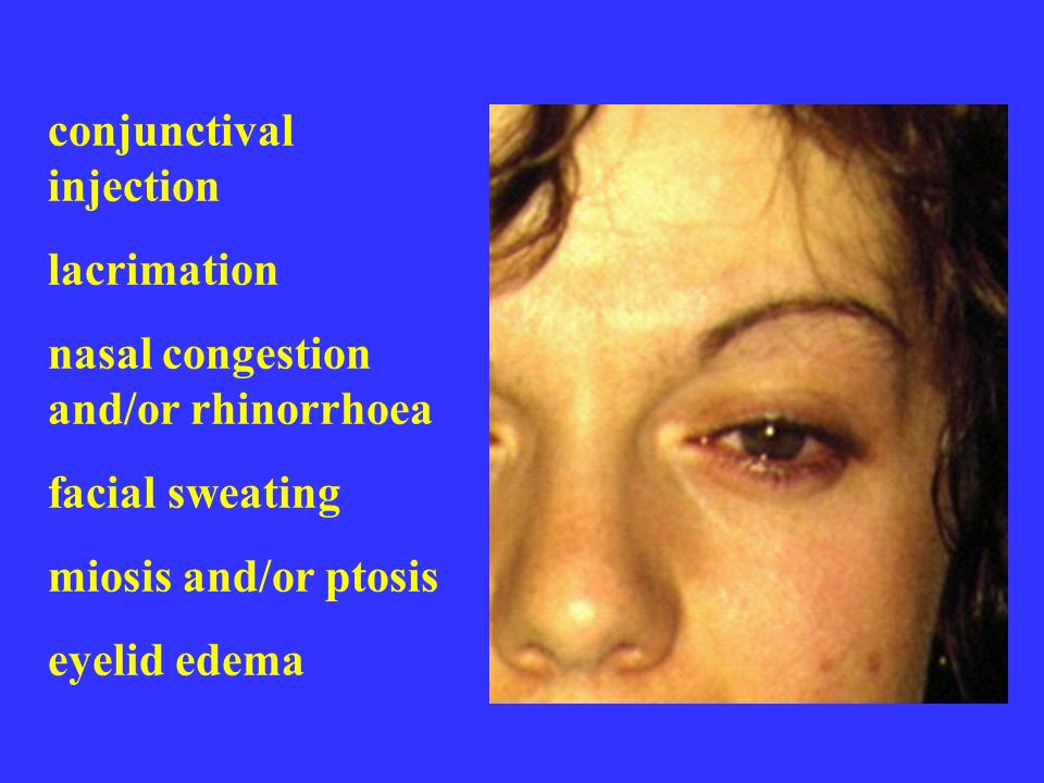 conjunctival injection lacrimation nasal congestion and/or rhinorrhoea facial sweating miosis and/or ptosis eyelid edema