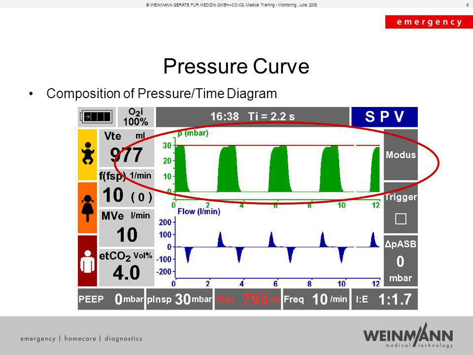 6 Pressure Curve Composition of Pressure/Time Diagram
