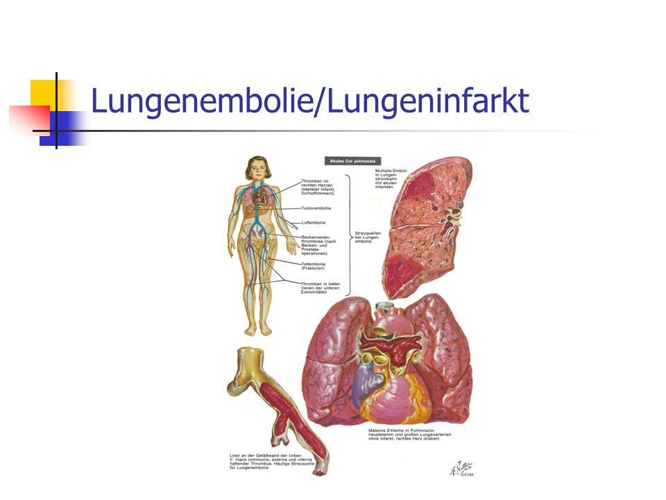 Spect-CT der Lunge bei Pulmonalembolie