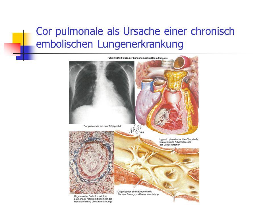 Cor pulmonale als Ursache einer chronisch embolischen Lungenerkrankung