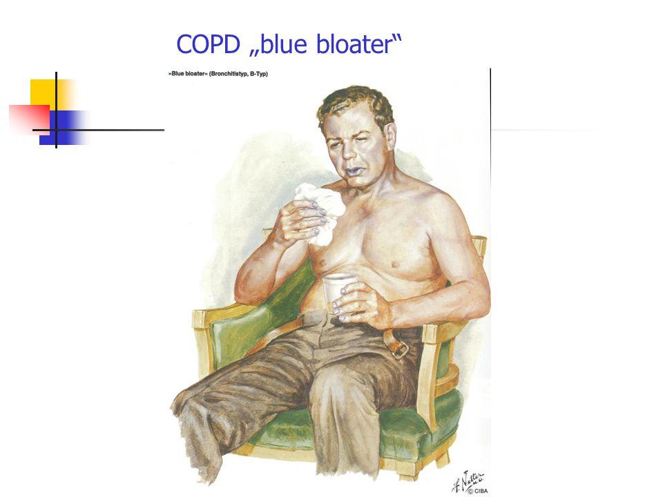 COPD blue bloater