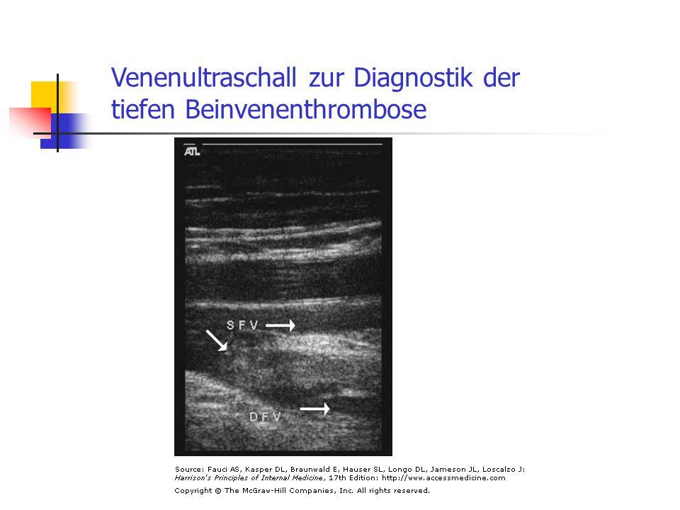 Venenultraschall zur Diagnostik der tiefen Beinvenenthrombose