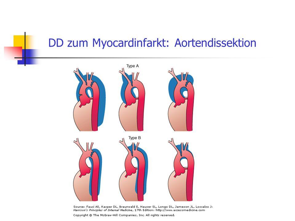 DD zum Myocardinfarkt: Aortendissektion