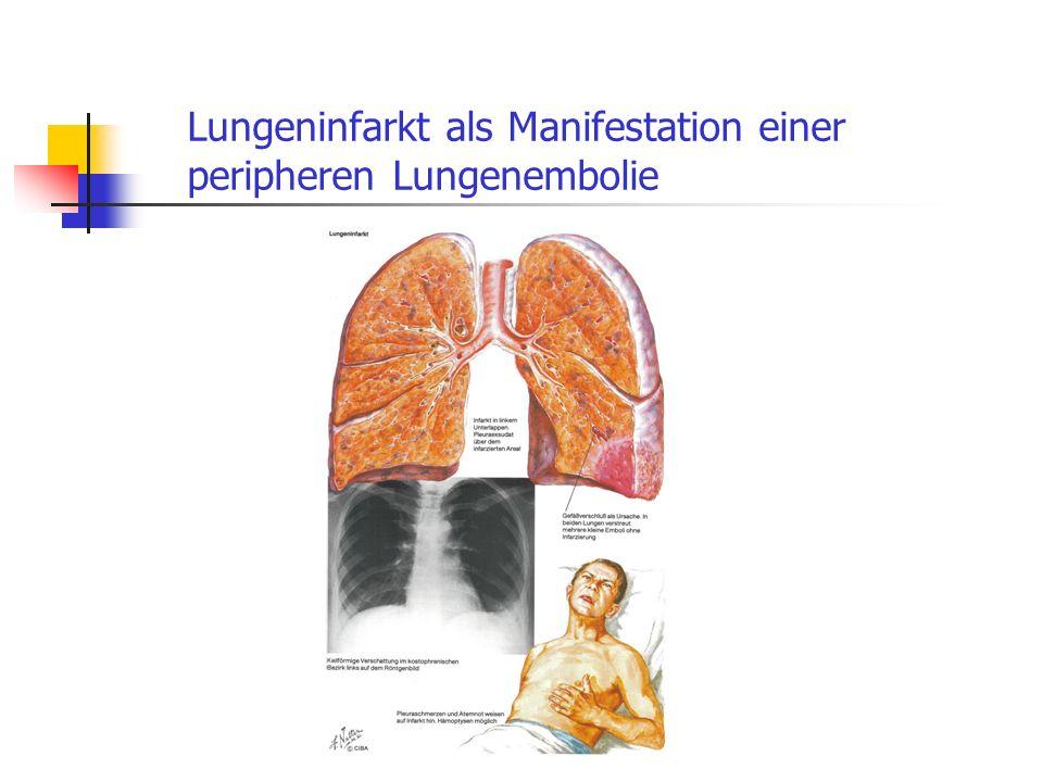 Lungeninfarkt als Manifestation einer peripheren Lungenembolie
