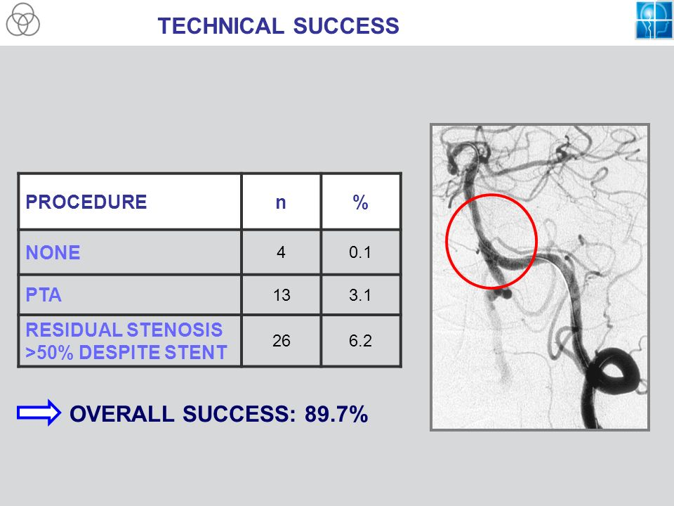 TECHNICAL SUCCESS PROCEDUREn% NONE 40.1 PTA 133.1 RESIDUAL STENOSIS >50% DESPITE STENT 266.2 OVERALL SUCCESS: 89.7%