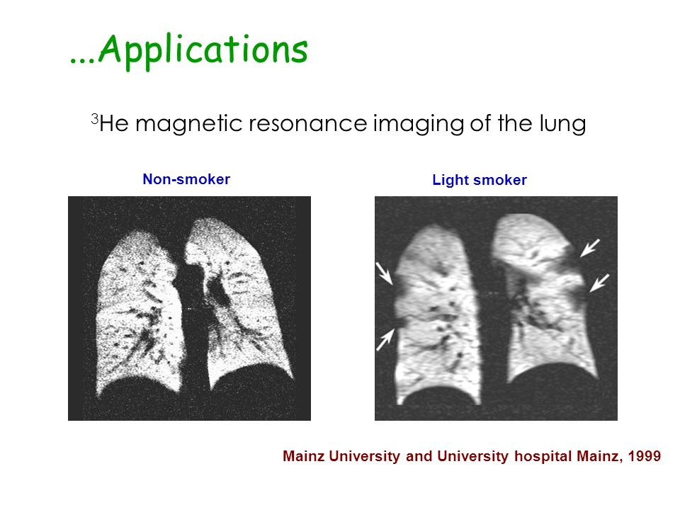 3 He magnetic resonance imaging of the lung Non-smoker Light smoker Mainz University and University hospital Mainz, 1999...Applications