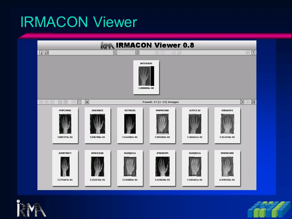 IRMACON Viewer (Detail)