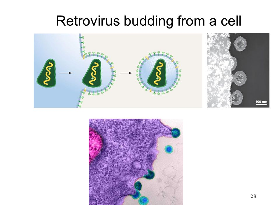 28 Retrovirus budding from a cell