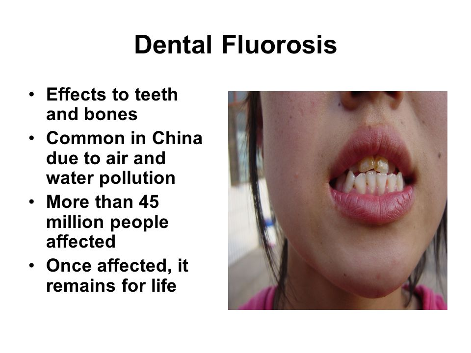 Dental Fluorosis Effects to teeth and bones Common in China due to air and water pollution More than 45 million people affected Once affected, it remains for life
