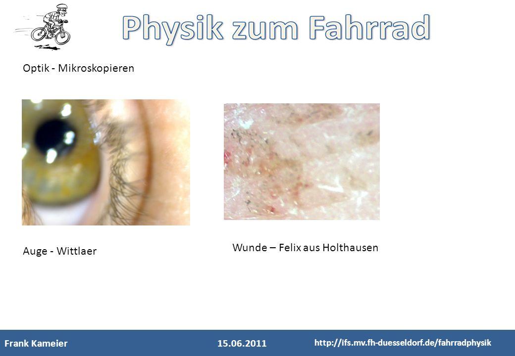 Frank Kameier15.06.2011 http://ifs.mv.fh-duesseldorf.de/fahrradphysik Optik - Mikroskopieren Auge - Wittlaer Wunde – Felix aus Holthausen