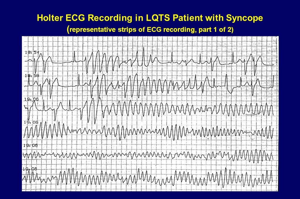 Causes of Arrhythmic Syncope Very rapid VT or TdP, with hypotension Atrial fibrillation or atrial flutter with very rapid ventricular response as in W