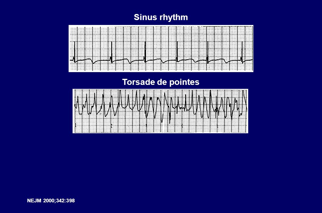 NEJM 2000;342:398 Sinus rhythm