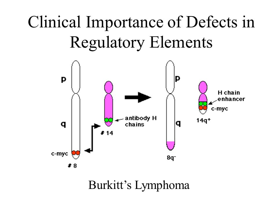 Clinical Importance of Defects in Regulatory Elements Burkitts Lymphoma