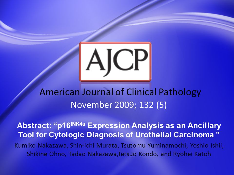 November 2009; 132 (5) American Journal of Clinical Pathology Abstract: p16 INK4a Expression Analysis as an Ancillary Tool for Cytologic Diagnosis of