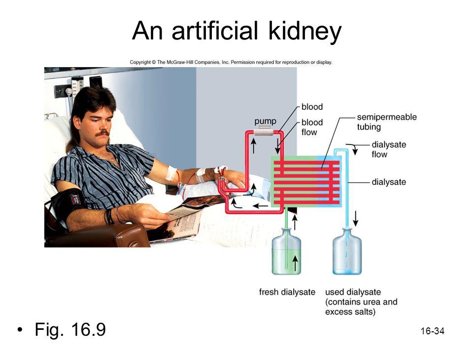 16-34 An artificial kidney Fig. 16.9