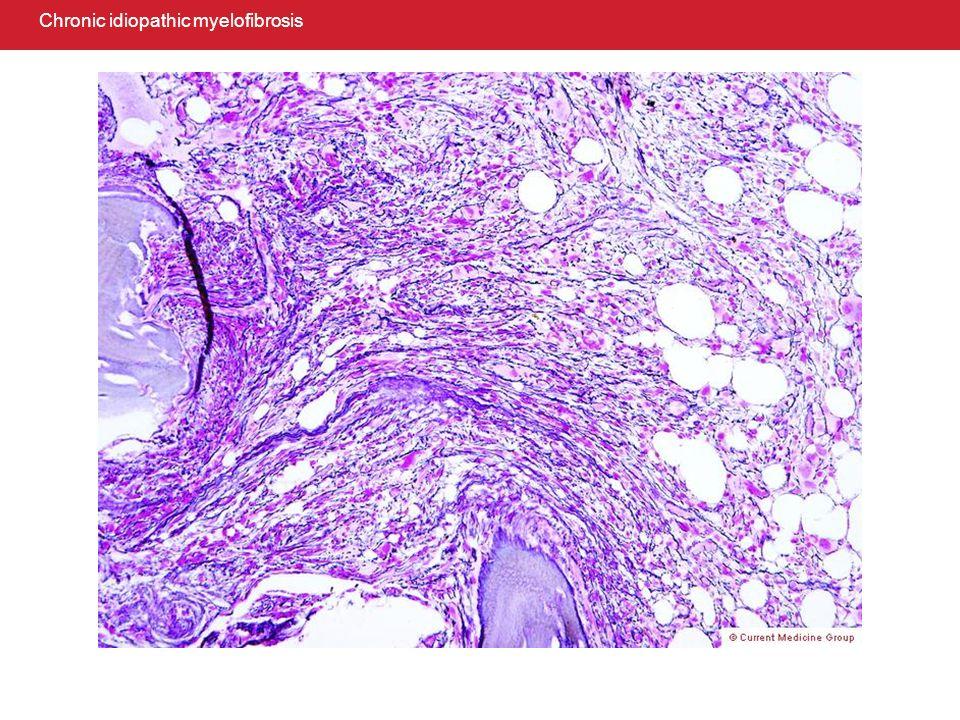 Chronic eosinophilic leukemia/hypereosinophilic syndrome: bone marrow biopsy