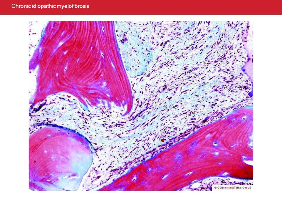 Pseudoprogression of germ cell tumor: malignant teratoma