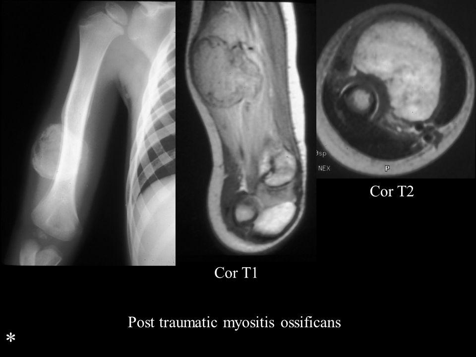 Cor T1 Cor T2 Post traumatic myositis ossificans *