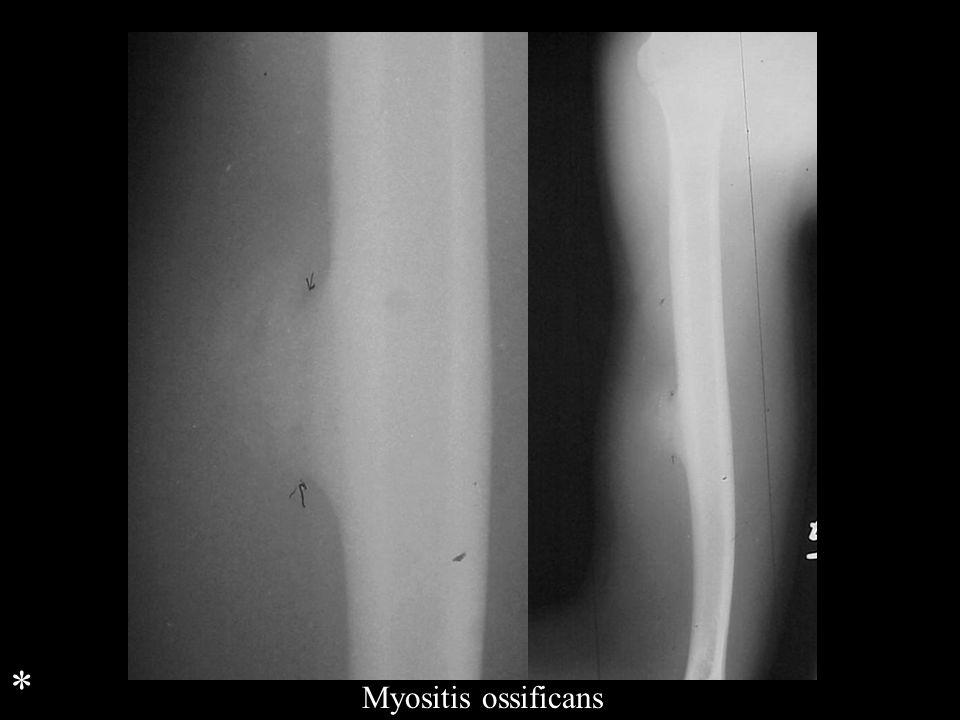 Myositis ossificans *
