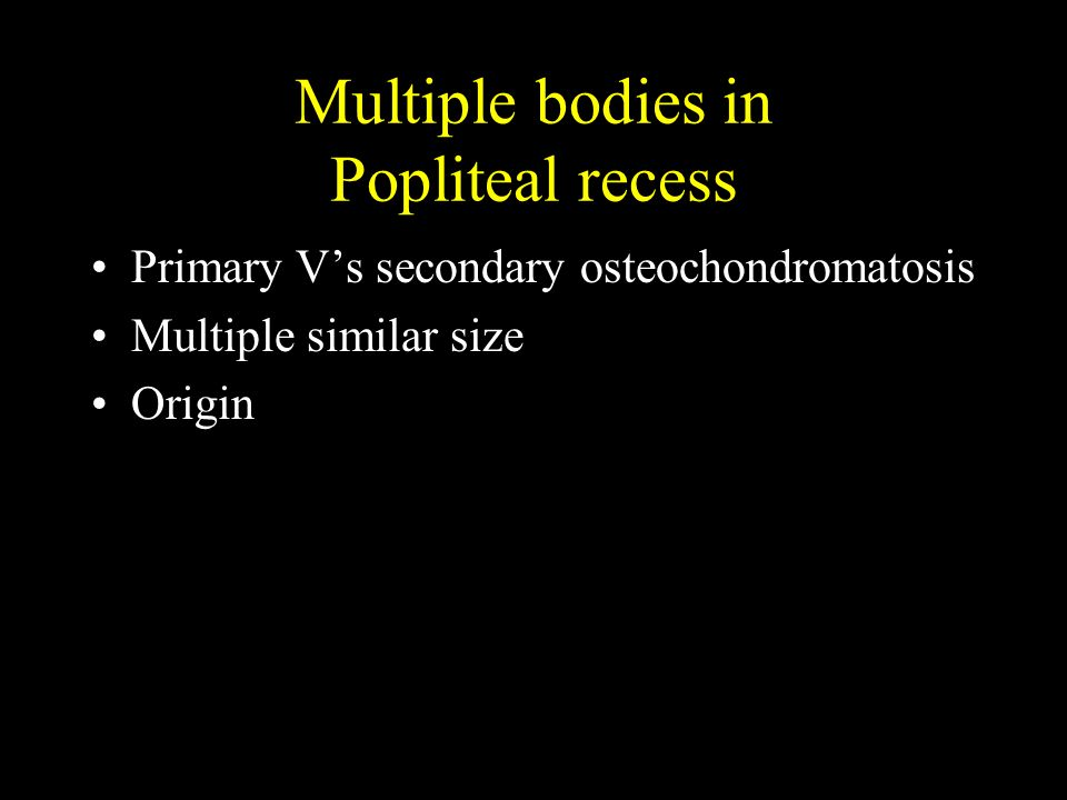 Multiple bodies in Popliteal recess Primary Vs secondary osteochondromatosis Multiple similar size Origin