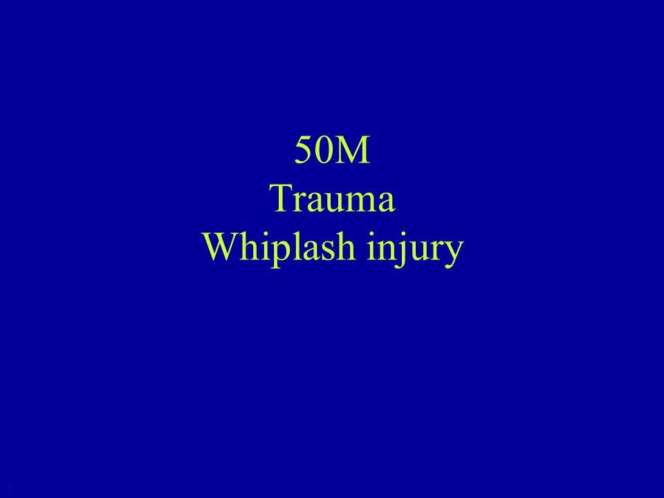 50M Trauma Whiplash injury 1