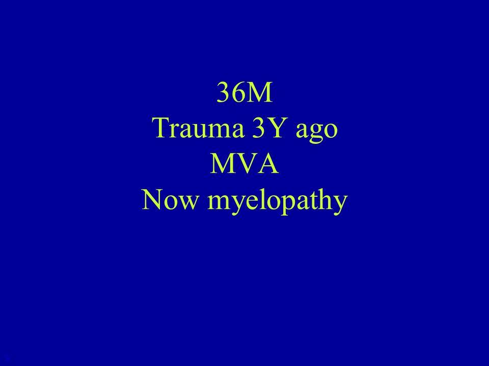 36M Trauma 3Y ago MVA Now myelopathy 3