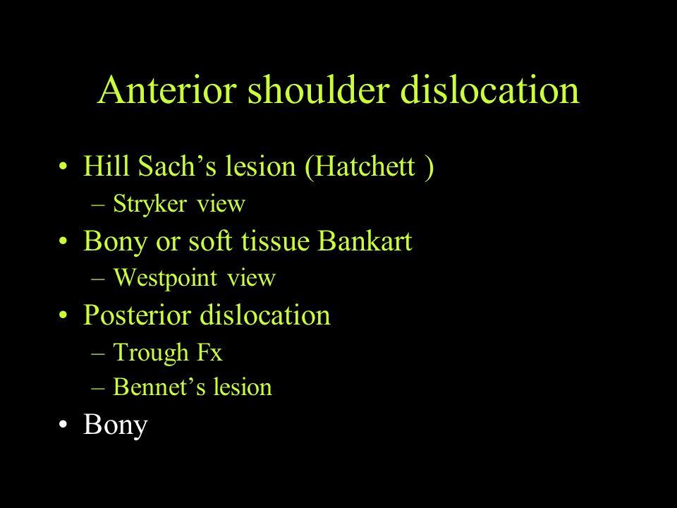 Anterior shoulder dislocation Hill Sachs lesion (Hatchett ) –Stryker view Bony or soft tissue Bankart –Westpoint view Posterior dislocation –Trough Fx