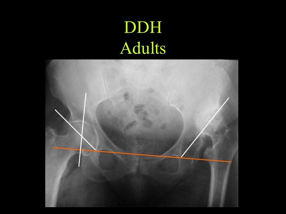 DDH Adults