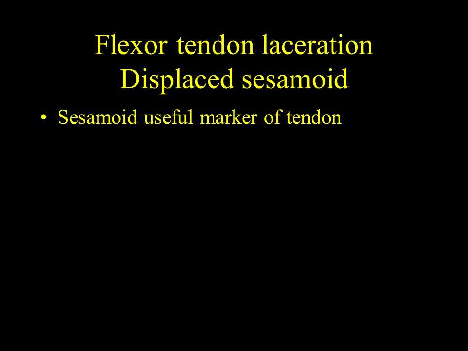 Flexor tendon laceration Displaced sesamoid Sesamoid useful marker of tendon