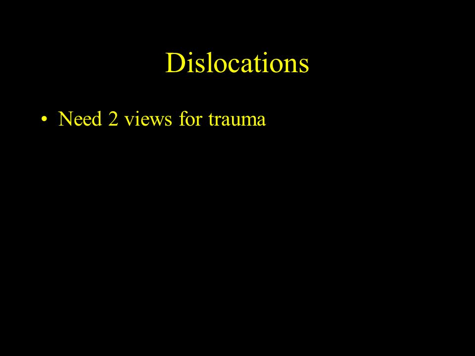 Dislocations Need 2 views for trauma
